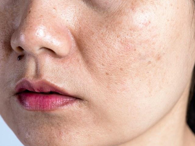 產生細紋的原因很多,像是老化、面部表情、抽菸、光老化等等都會讓你的臉上產生細紋,這一篇文章會教你如何減少細紋產生。