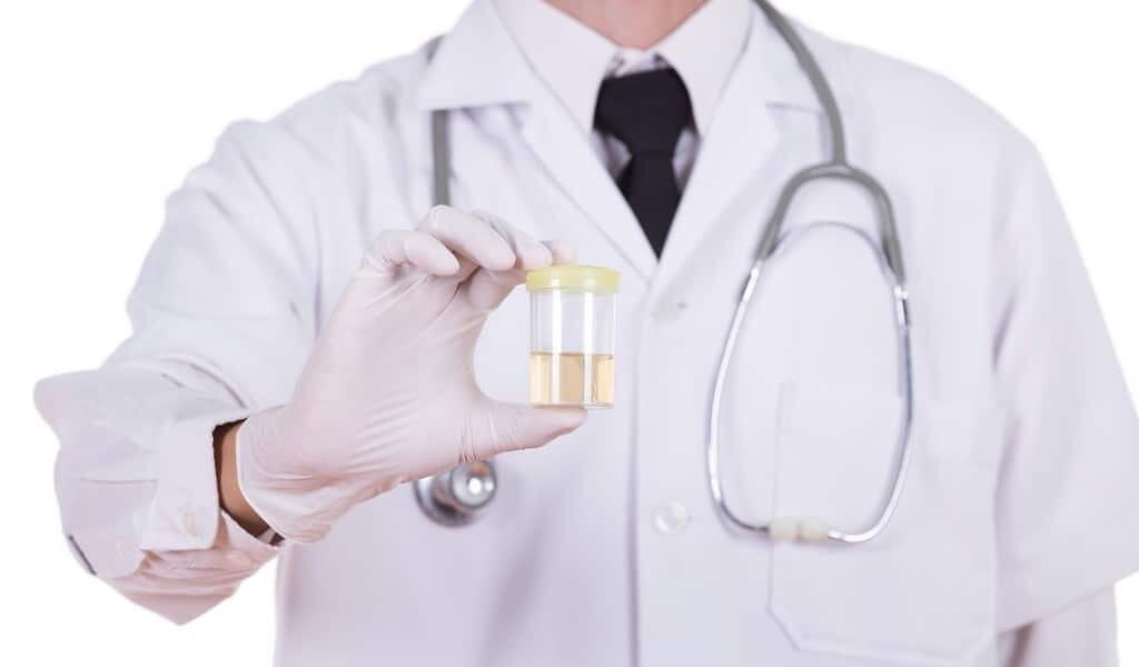 ADN-dans-urine-pour-détecter-le-cancer