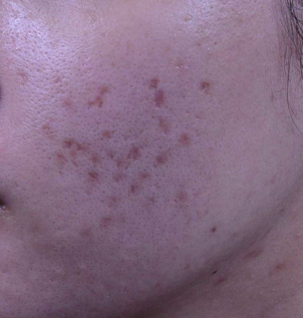 來看看嚴重的冰鑿型痘疤用協同式痘疤治療的治療成果!