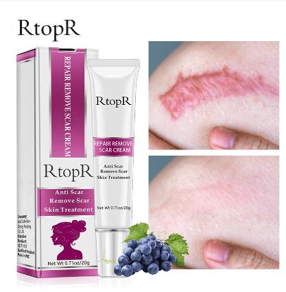Repair Remove Scar Cream