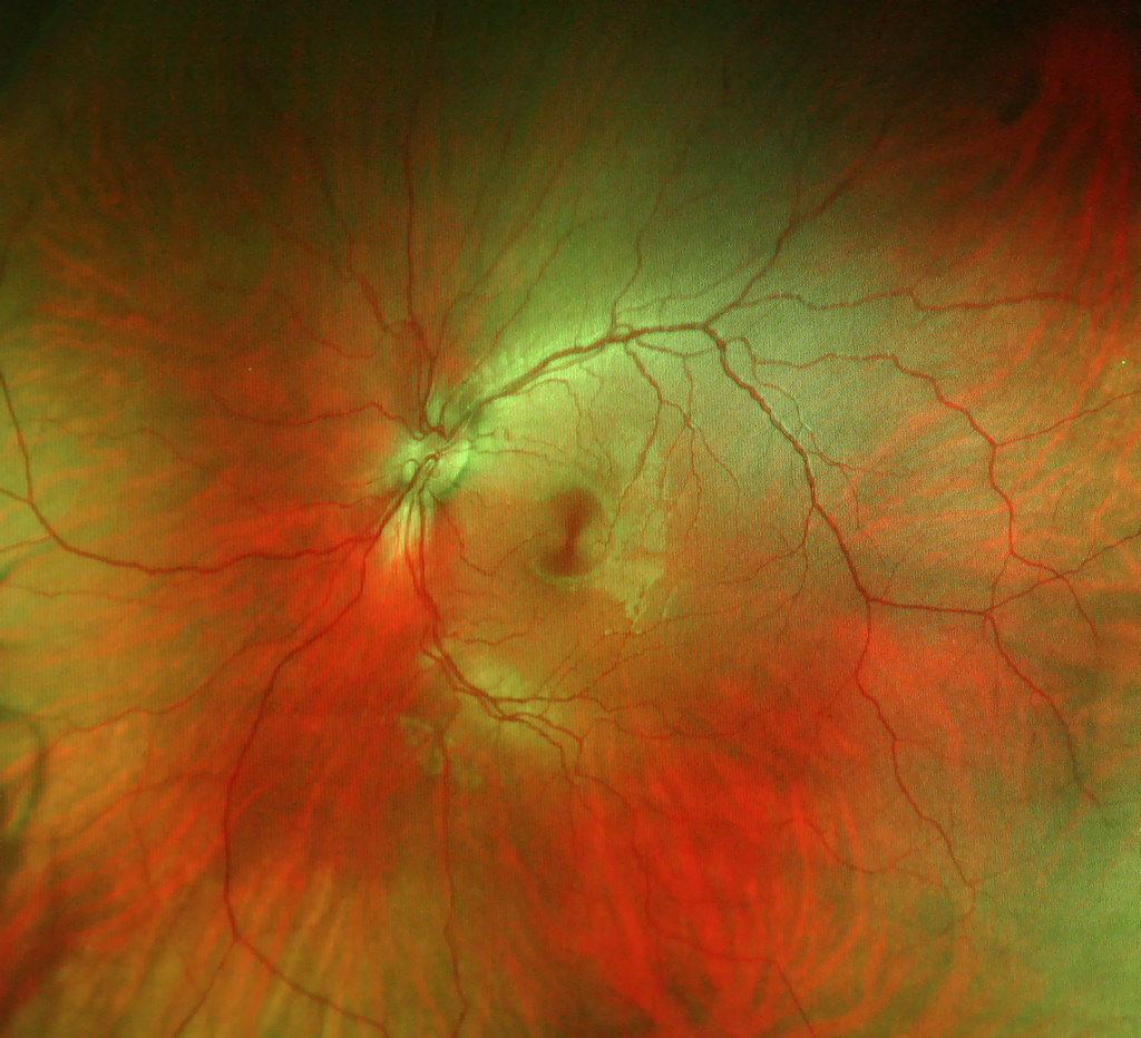 Inside My Left Pupil