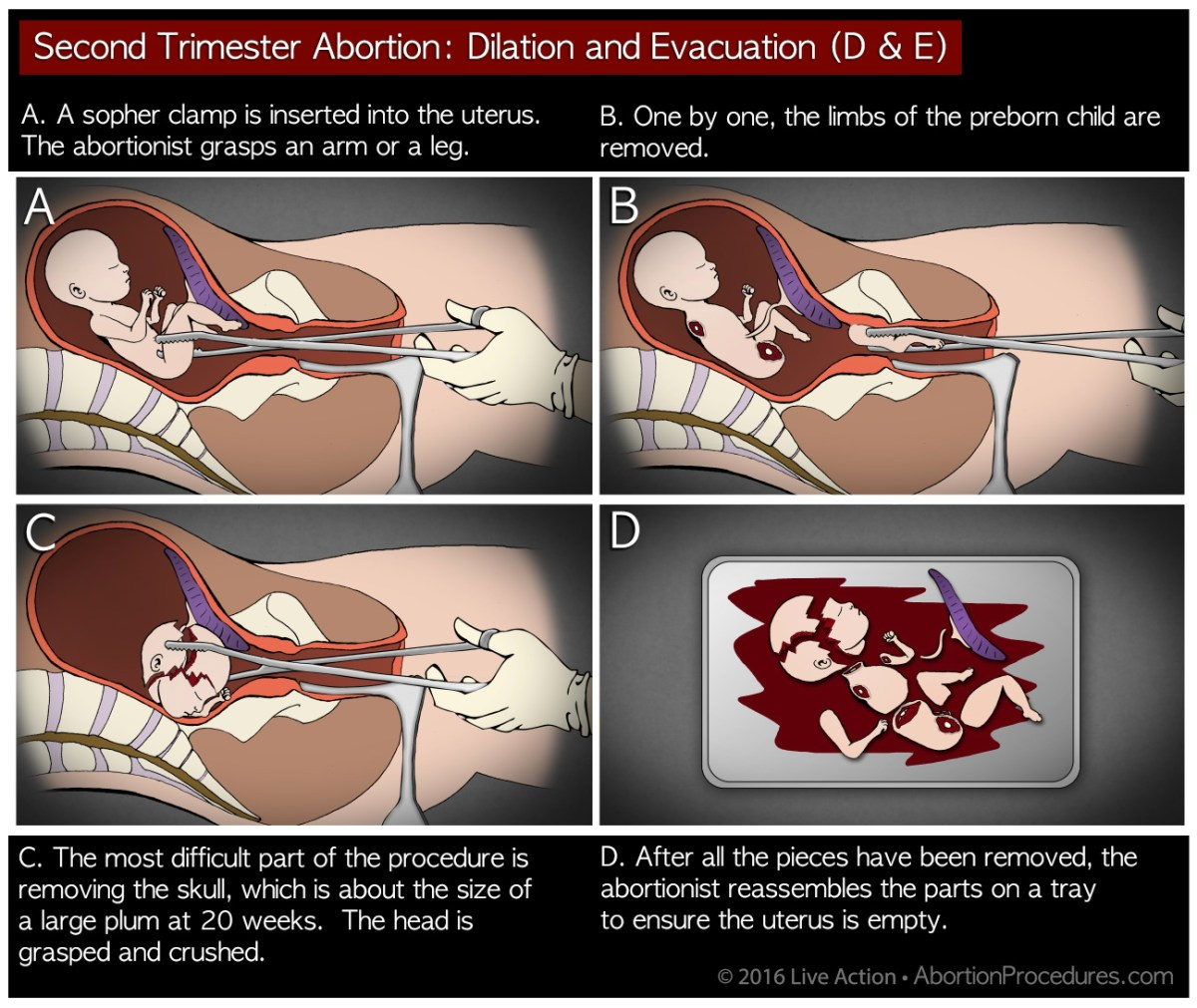 Arkansas governor signs into law a bill banning dismemberment abortions