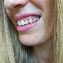 chantal boyajian smile brilliant professional home teeth whitening live authenchic review