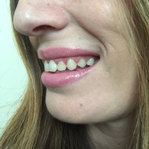 chantal boyajian smile brilliant review at home teeth whitening kit smile brilliant
