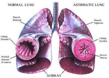 Asthma Ayurvedic Home Remedies