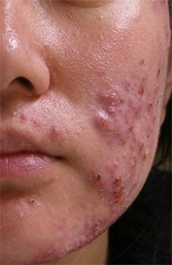 acne Ayurvedic Home remedies