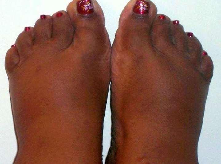 older womens feet