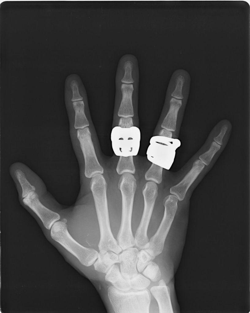 木下昭仁の『我が家の骸骨』 : NO.23 私の手