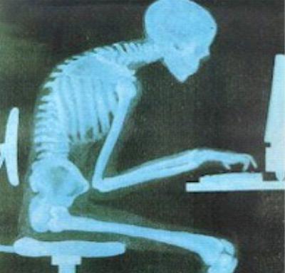 computer-kyphosis