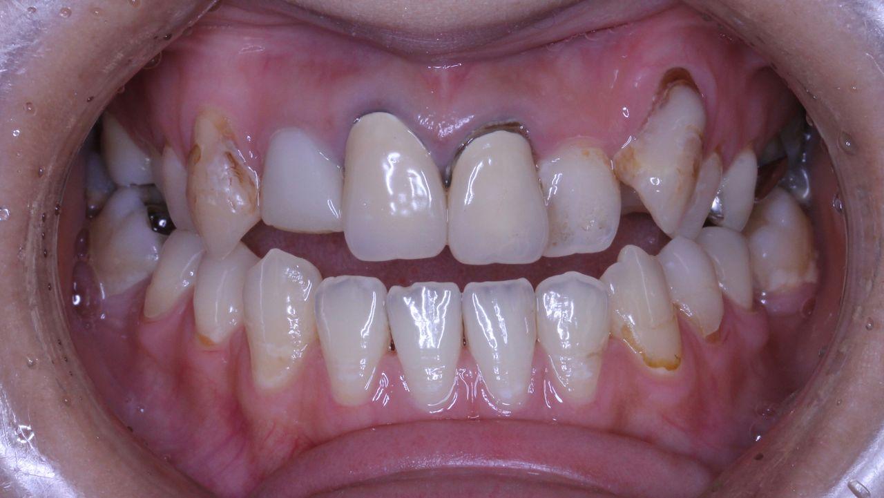 差し歯のやり直しはむずかしい : プロ先生の歯列矯正日記