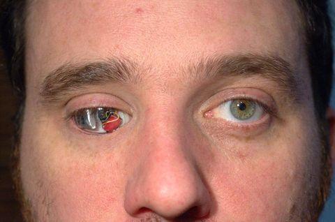 事故で片目を失った男性 小型カメラを備えた人工眼球を瞳に 進化するサイボーグ技術 カナダ