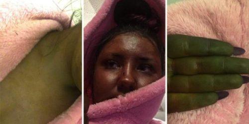 Woman-left-looking-like-Shrek-