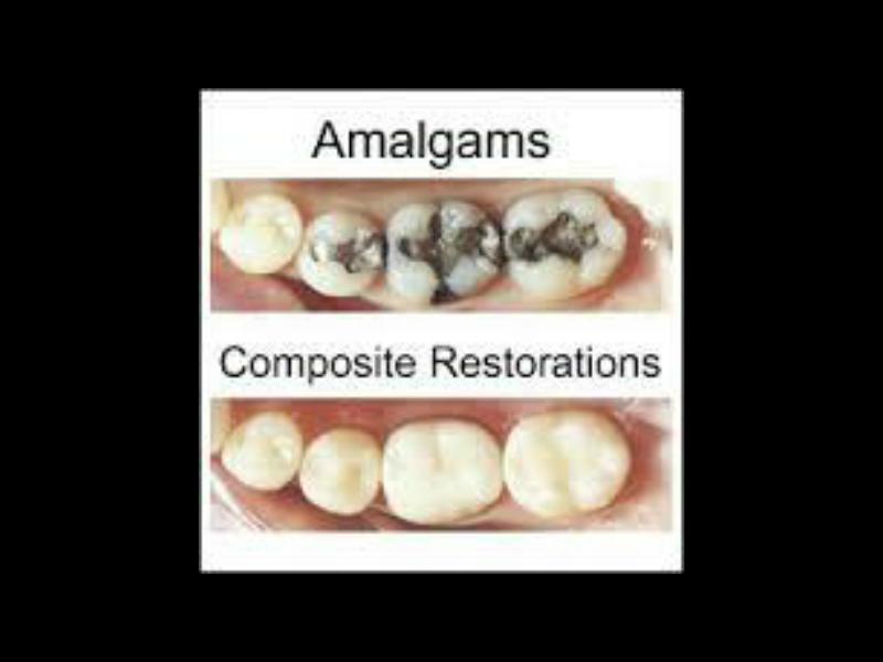 Amalgam-Composite