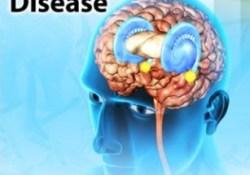 parkinsons-disease3