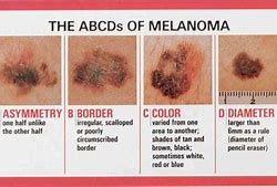 melanoma feature