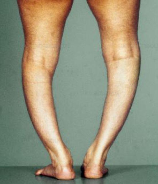 Bow legs and bone softening  Vitamin D