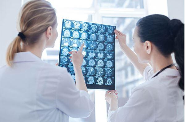 Migraine diagnosis, CT scan, MRI scan