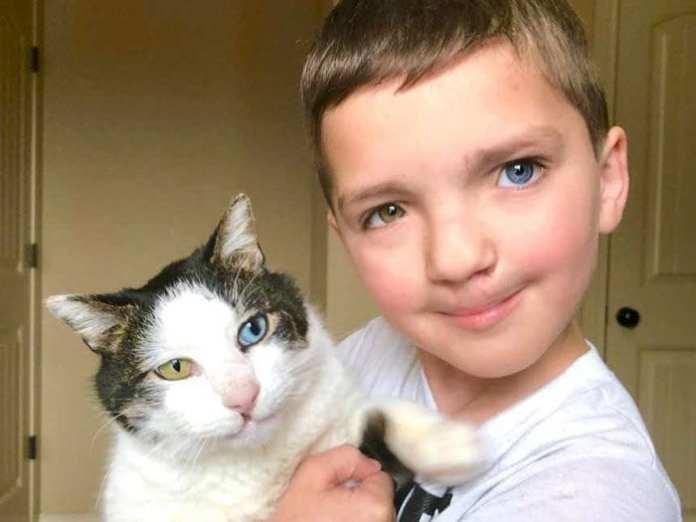 Băiatul adoptă o pisică cu aceleași condiții genetice rara că și el. O poveste emoționantă!