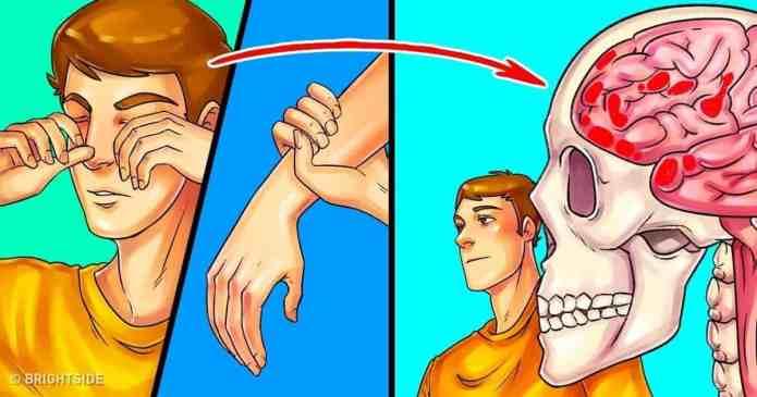 Cum să recunoști un accident vascular cerebral și ce trebuie să faci in aceasta situatie