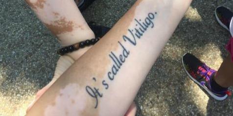 "arm with ""it's called vitiligo"" tattoo"