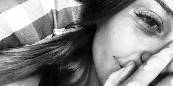 girl with vitiligo