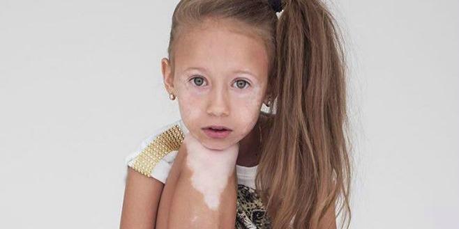 children with vitiligo