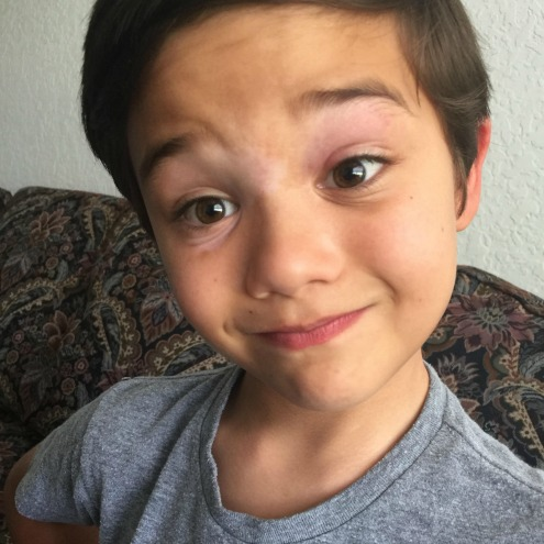 Meet Tommy, age 8 from Florida