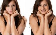 Girl models vitiligo concealer before and after