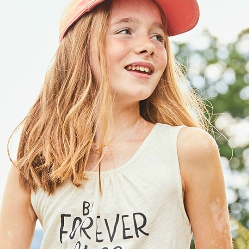 Meet The 11 Year Old Vitiligo Model Changing The Face Of Beauty