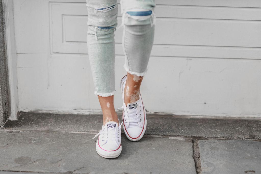 feet with vitiligo
