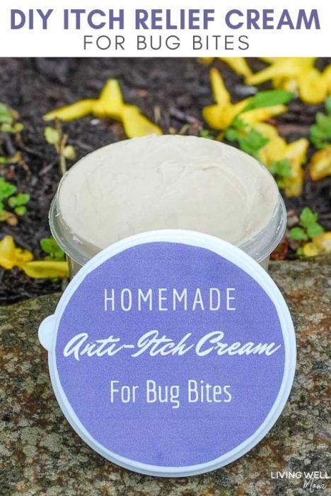 diy itch relief cream for bug bites
