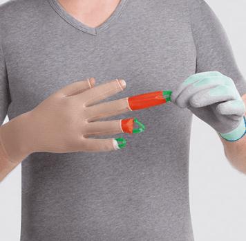 Med Dactyna fingre tager det maks to minutter at få kompressionshandsken på