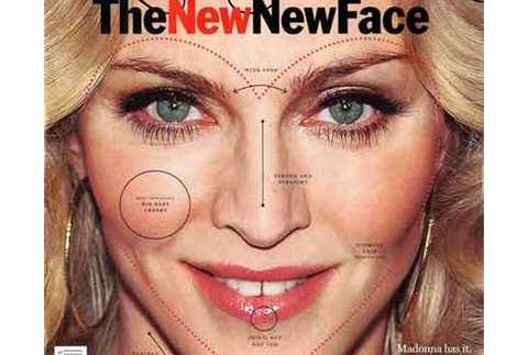 celebrity-influence-plastic-surgery2