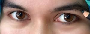 Alhamdulillah mata saya kembali ke wujud semula.