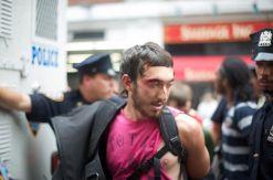 Protestor bleeding and shirt torn