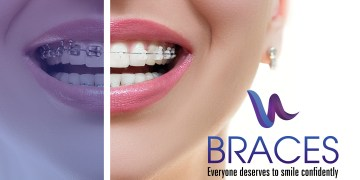 What is orthodontics? Is orthodontic treatment right for me?