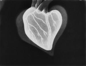 X-rayed heart