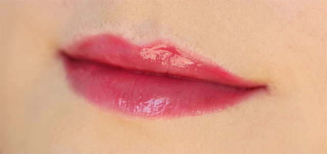 sla lips