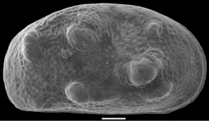 An SEM image of an ostracod valve