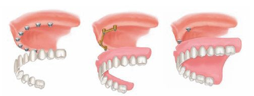 How to Get the Perfect Fit With Implant Supported Dentures