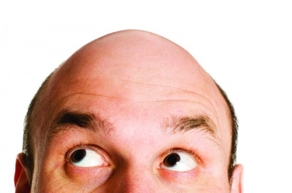Baldness; Men's Health, Hair