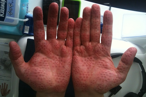 My hands after 5 minutes of gentle acupressure