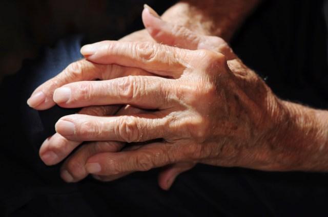 Arthritis_Pain_Hands_Senior_Citizen