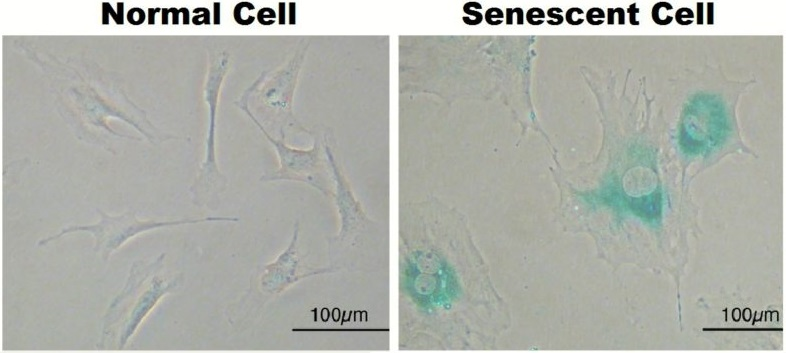 Senescent cells vs. healthy ones.