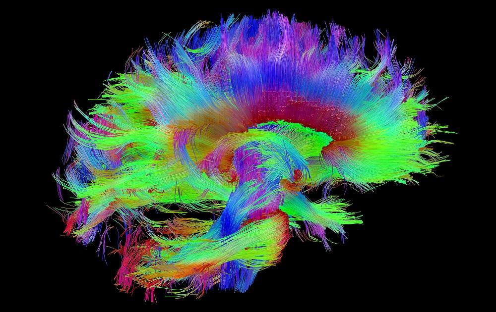 Chasing Breakthrough Cures for Parkinson's Disease