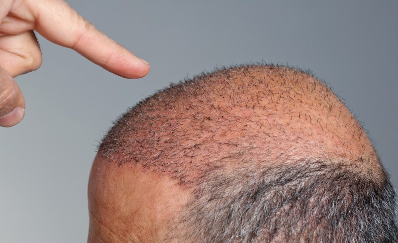 Why we go bald - the hallmarks of balding.
