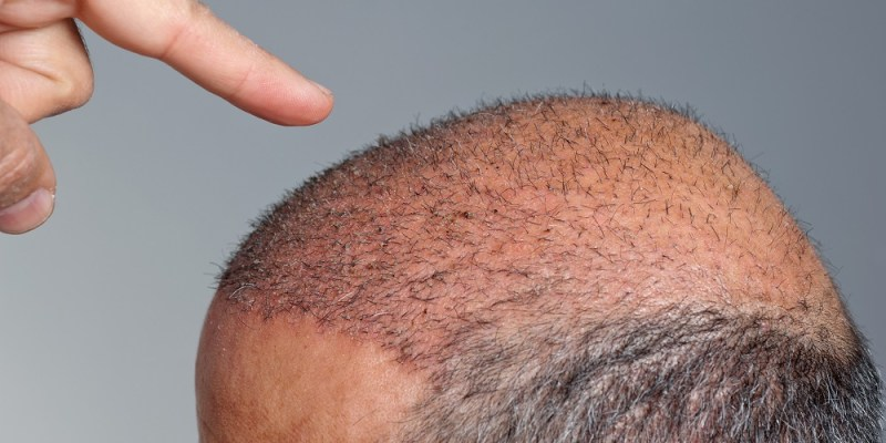 Why we go bald - the hallmarks of balding.