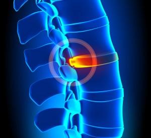 Bulging Disc Chiropractic Care Longmont