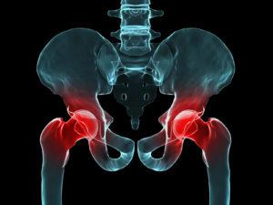 hip pain chiropractor Longmont