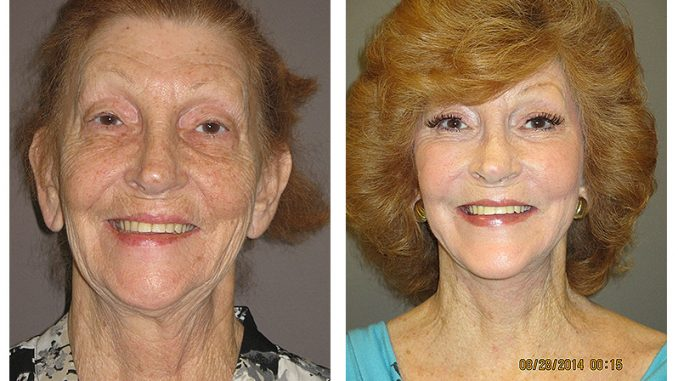 Full facelift by Dr. Brian Machida, facial plastic surgeon of Ontario, Inland Empire CA-Before & After photos